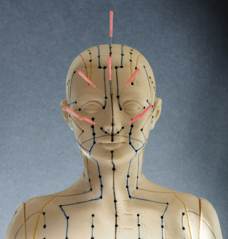 Facial Acupuncture Points with Needles