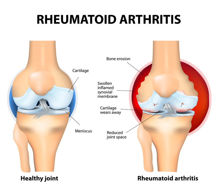 Relieve Arthritis Pain by Acupuncture